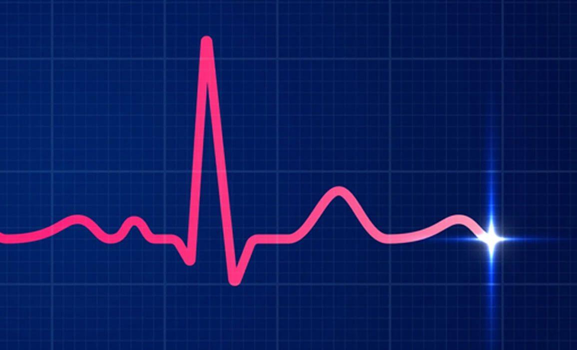 EKG Fun